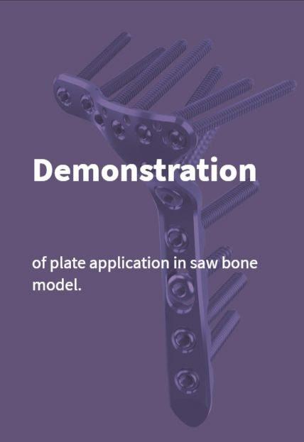Tibia Plate Demonstration